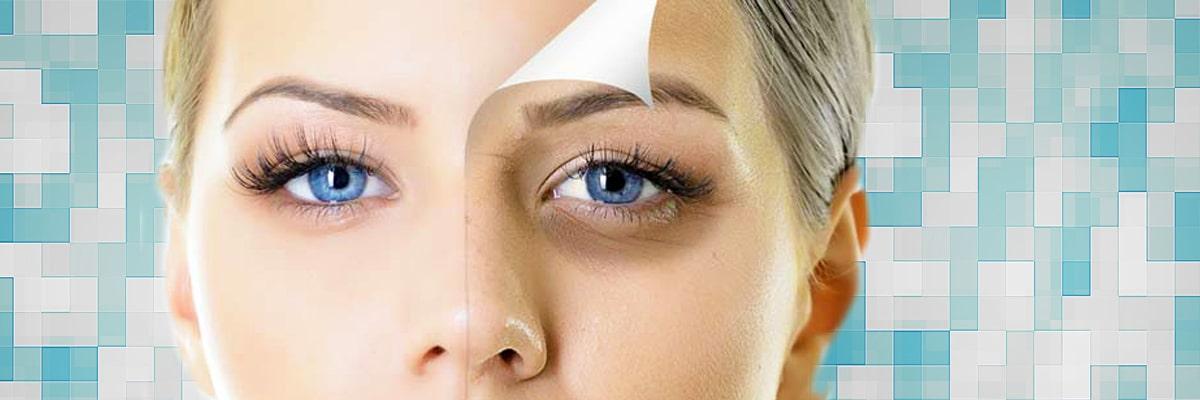 درمان سیاهی و گودی زیر چشم و پف چشم