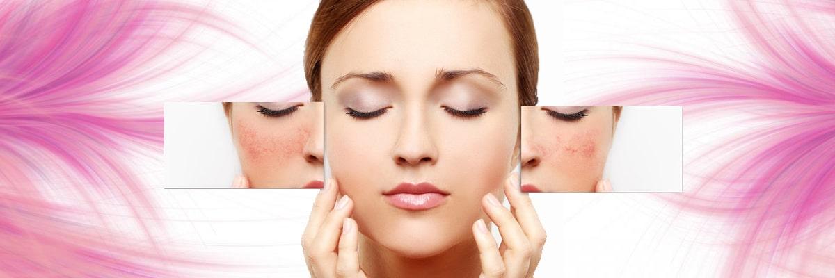 درمان رگهای خونی صورت و درمان واریس
