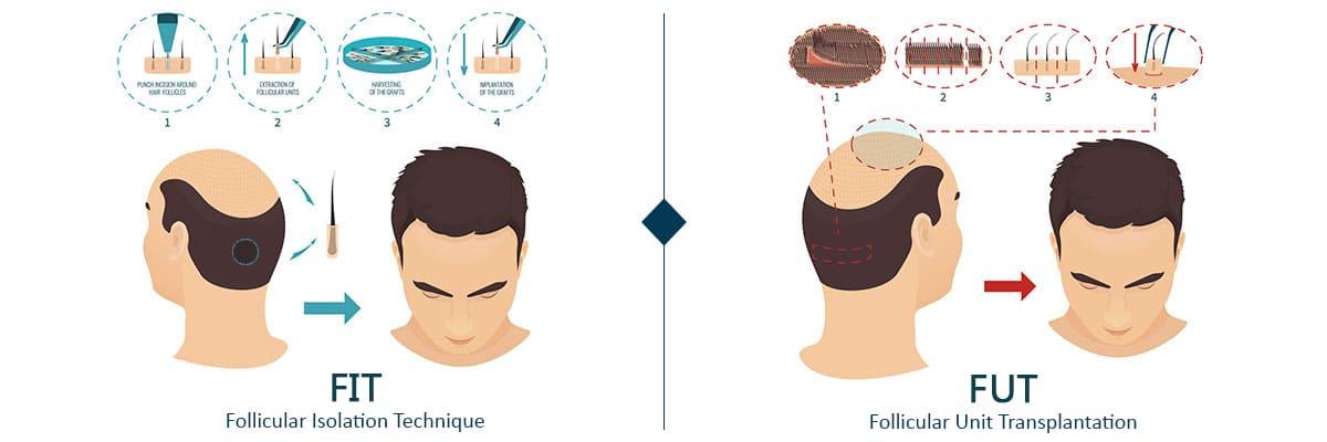 مقایسه کاشت مو FUT با FIT