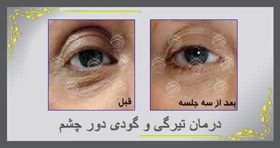 درمان تیرگی و گودی دور چشم
