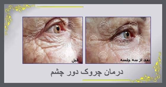 درمان چروک و پف دور چشم