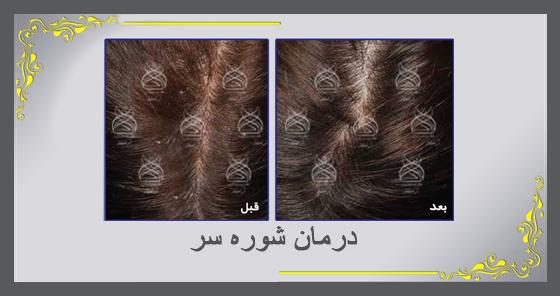 درمان ریزش مو و شوره سر